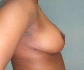 Manhattan Breast Reduction after 1